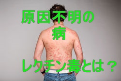 stock-photo-dermatological-skin-disease-psoriasis-more-pronounced-on-the-elbows-psoriasis-skin-psoriasis-is-1345623107-2